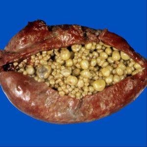 تصویر کیسه صفرای جراحی شده پر از سنگ های صفراوی